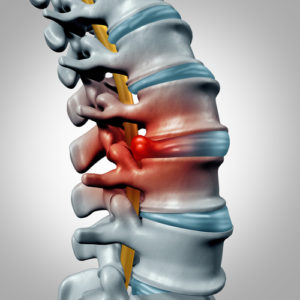 Herniated disk concept and spine pain diagnostic as a human spinal system symbol as medical health problem and anatomy symbol with the skeletal bone structure and intervertebral discs closeup.