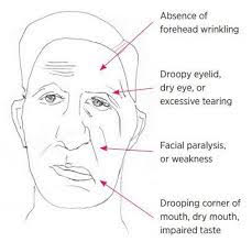 Image of man with symptoms before Bell's palsy treatment.