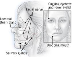 Diagram image of cranial nerve helps with Bell's palsy treatment.