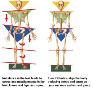 foot orthopedic