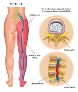 Sciatic nerve pain relief is possible. This sciatic nerve diagram shows how the sciatic nerve runs down the leg and a cut out that shows how a bulging or herniated disk presses on it.